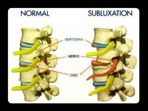 What is a subluxation? Correct Partial Dislocation
