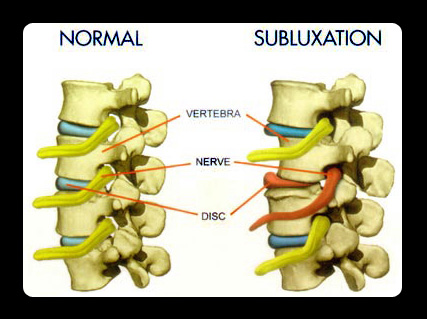Image result for subluxation