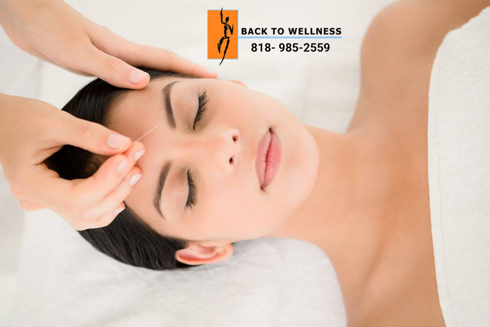 Acupuncture in Studio City Can Treat Many Conditions